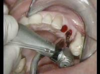 Embedded thumbnail for Chirurgia flapless con impianti JDEvolution®