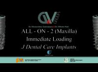 Embedded thumbnail for All-on-2 maxilla JD Implants