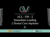 Embedded thumbnail for All-on-2 mandible JD Implants
